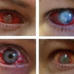 Eye Trauma Contact Lenses