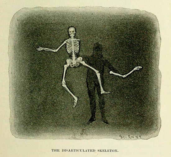 The Disarticulated Skeleton Magic Trick